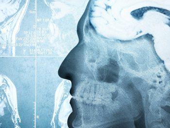 ΜΑ02: Κλινική Νευρολογία και Ψυχιατρική
